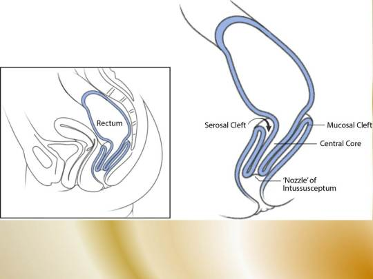 diagram of intussusception constipation due to deep cul-de-sac | constipation ... diagram of inside of the lungs